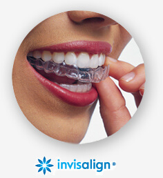 Houston Invisalign