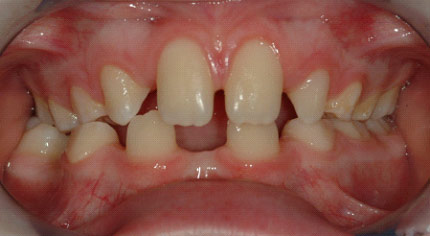 Large gaps in teeth