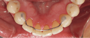 fixed bonded retainer lower teeth