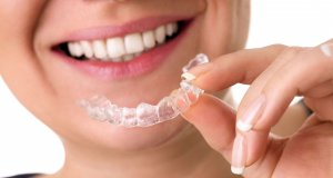 vivera retainer invisalign houston texas
